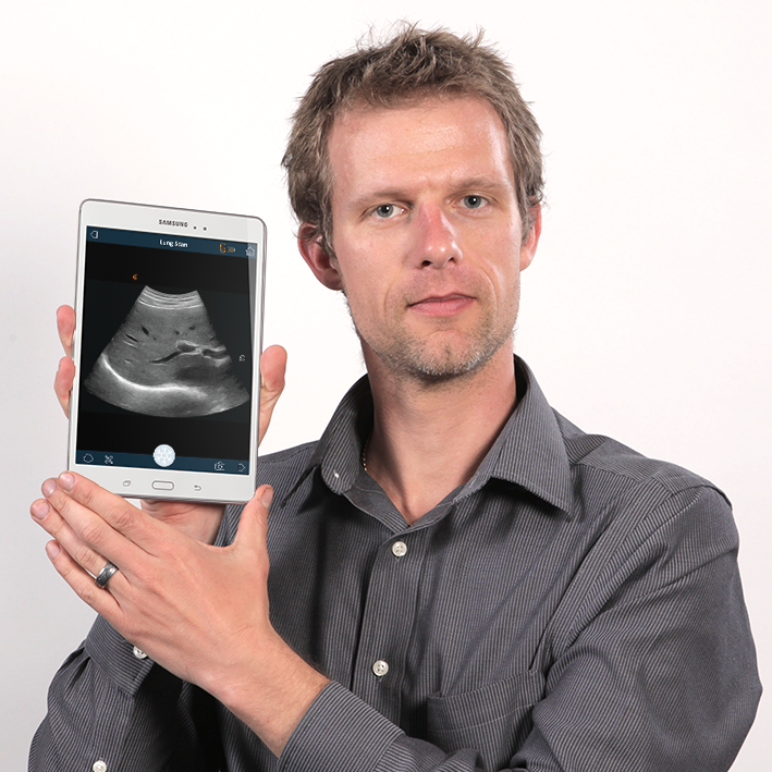 Kris Dickie shows an ultrasound image from the handheld Clarius Wireless Ultrasound Scanner