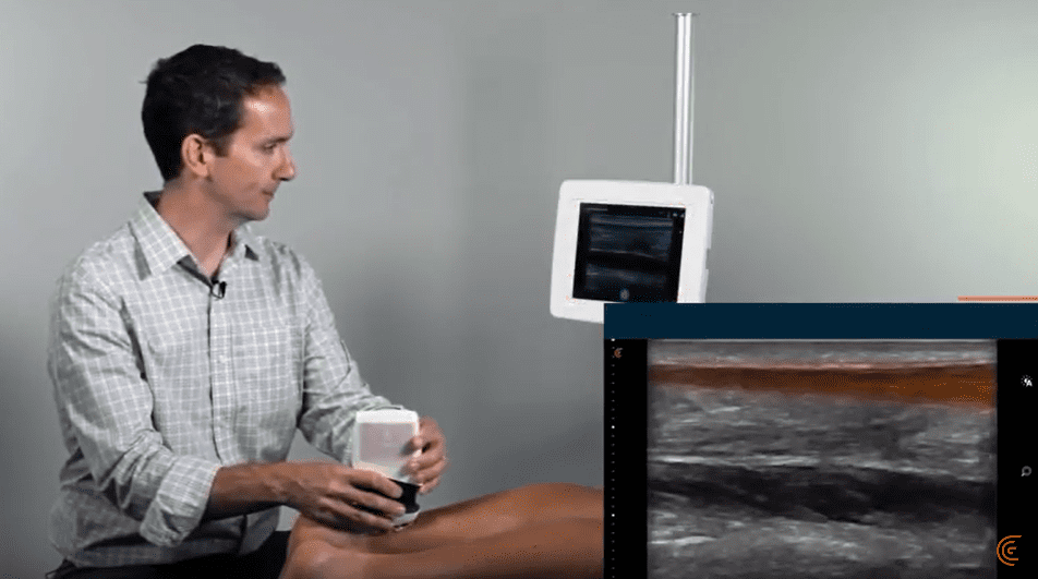 Chris Eddy shows how to scan the Achilles Tendon using Clarius Ultrasound