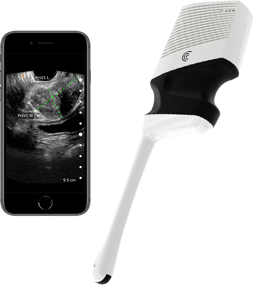 Prostate scan with Clarius EC7 endocavity scanner