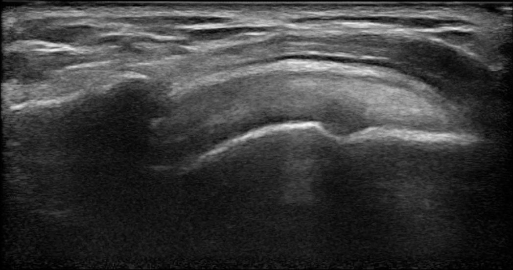 Clarius Ultrasound Shoulder