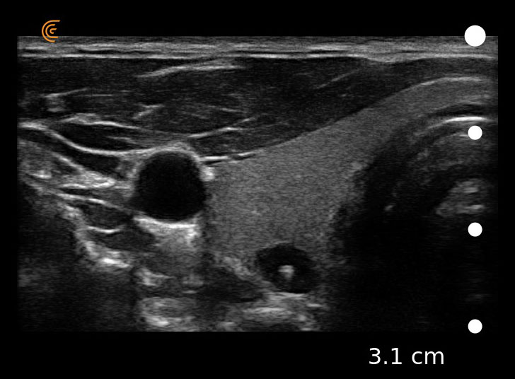 Ultrasound Clarius Thyroid