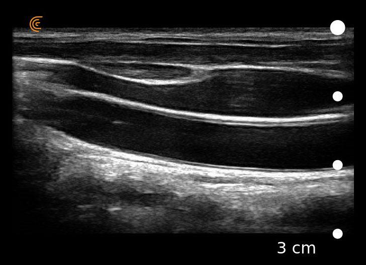 Clarius Vascular Thyroid Image