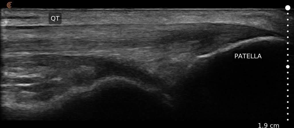 Quadriceps Tendon Clarius Image L15 HD