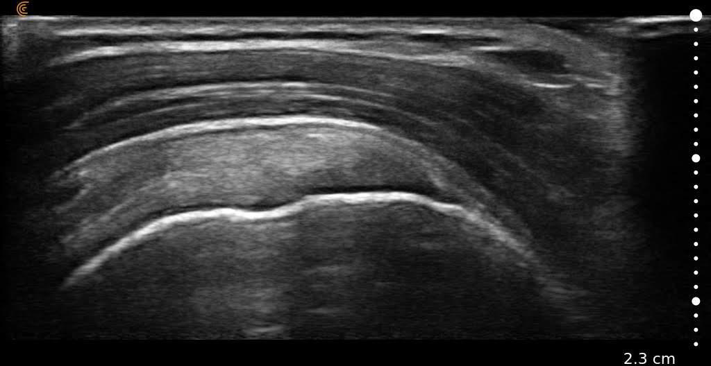 Rotator Cuff - Supraspinatous Ultrasound HD