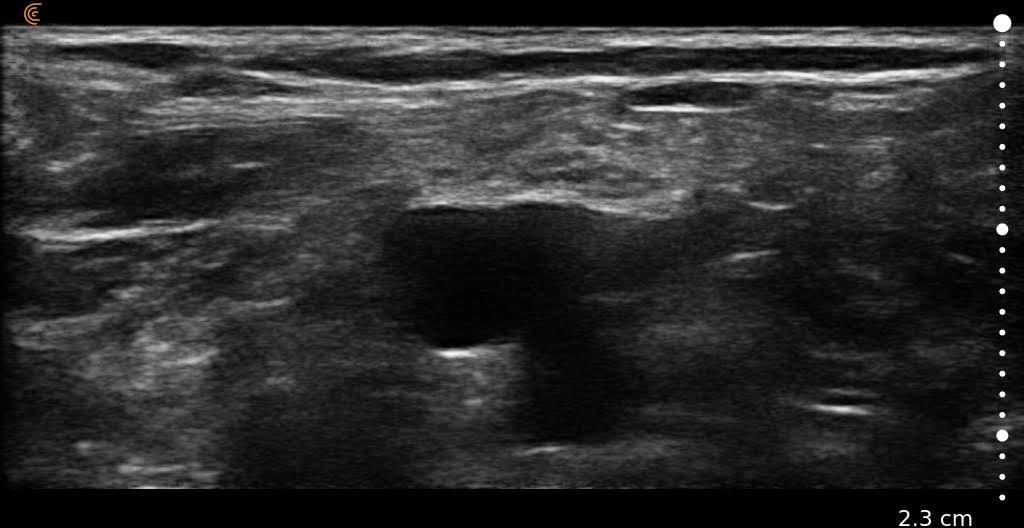 Popliteal Nerve Ultrasound Clarius
