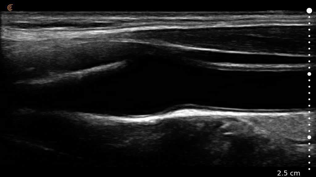 Carotid Artery Scanner Image Clarius