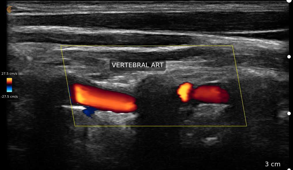 Vertebral Artery Pocket Clarius L15 HD