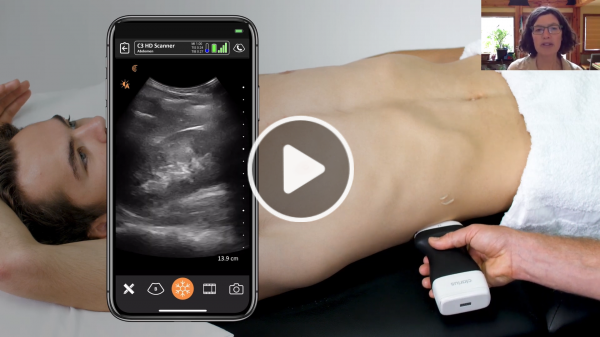 60e779079cd39-fbutube-Pragmatic POCUS for Urgent and Primary Care_ Diagnosing Renal, Gallbladder and Aortic Pathology 24-53 screenshot